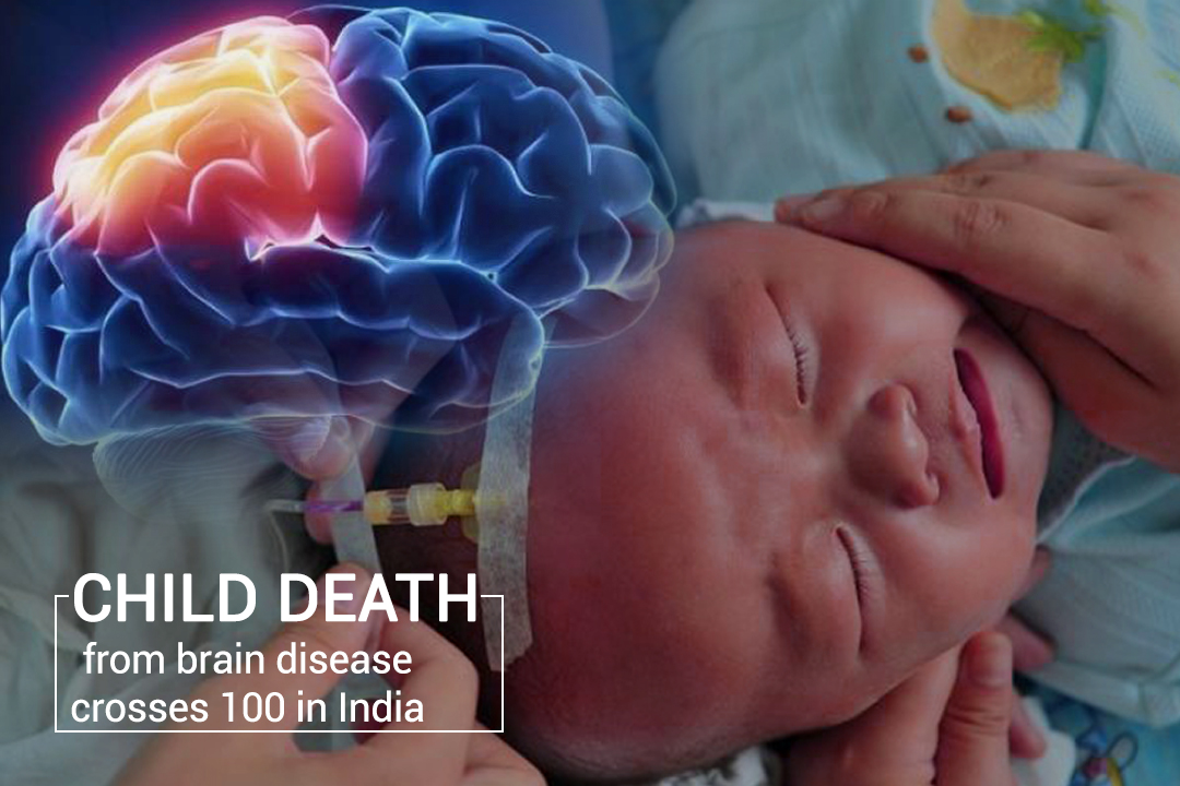 More than 100 Children died of Brain Disease in India